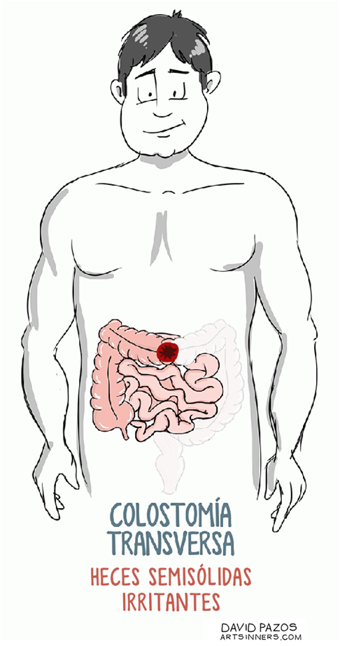 4. Colostomía transversa