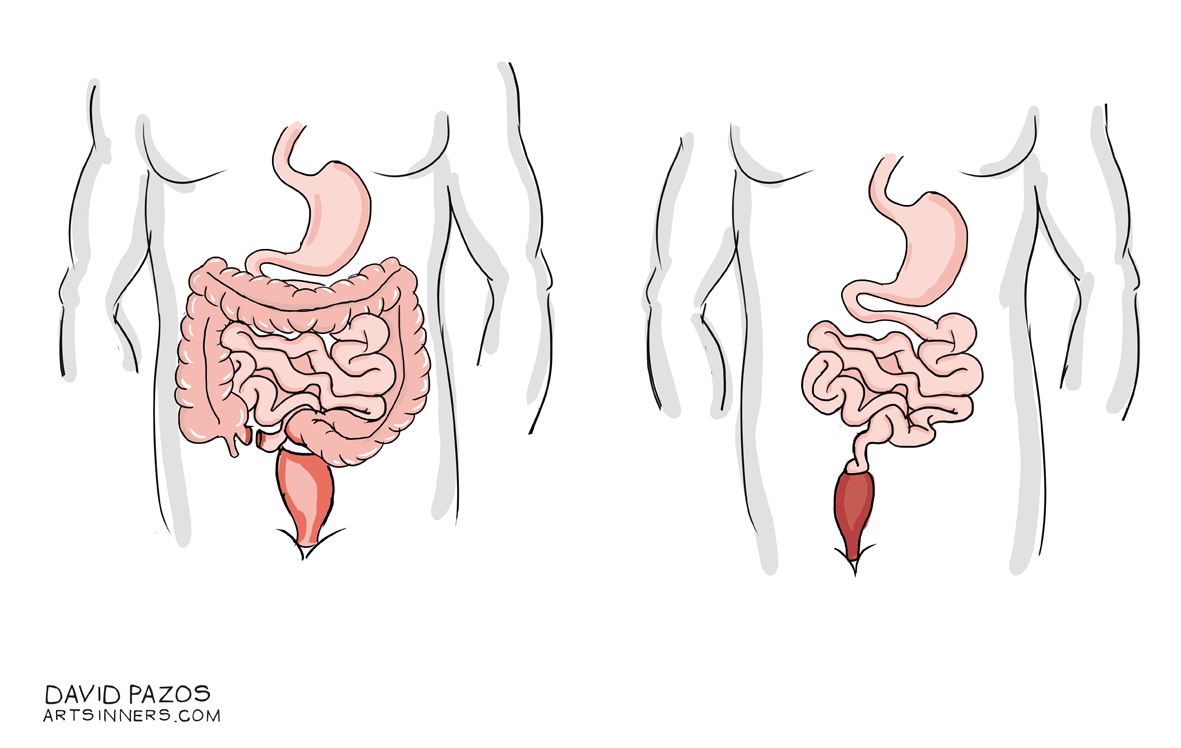 Educainflamatoria. Enfermedad inflamatoria intestinal ...