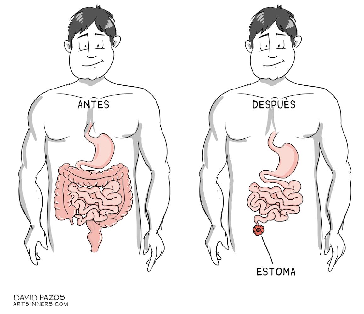 Educainflamatoria. Enfermedad inflamatoria intestinal Crohn y ...