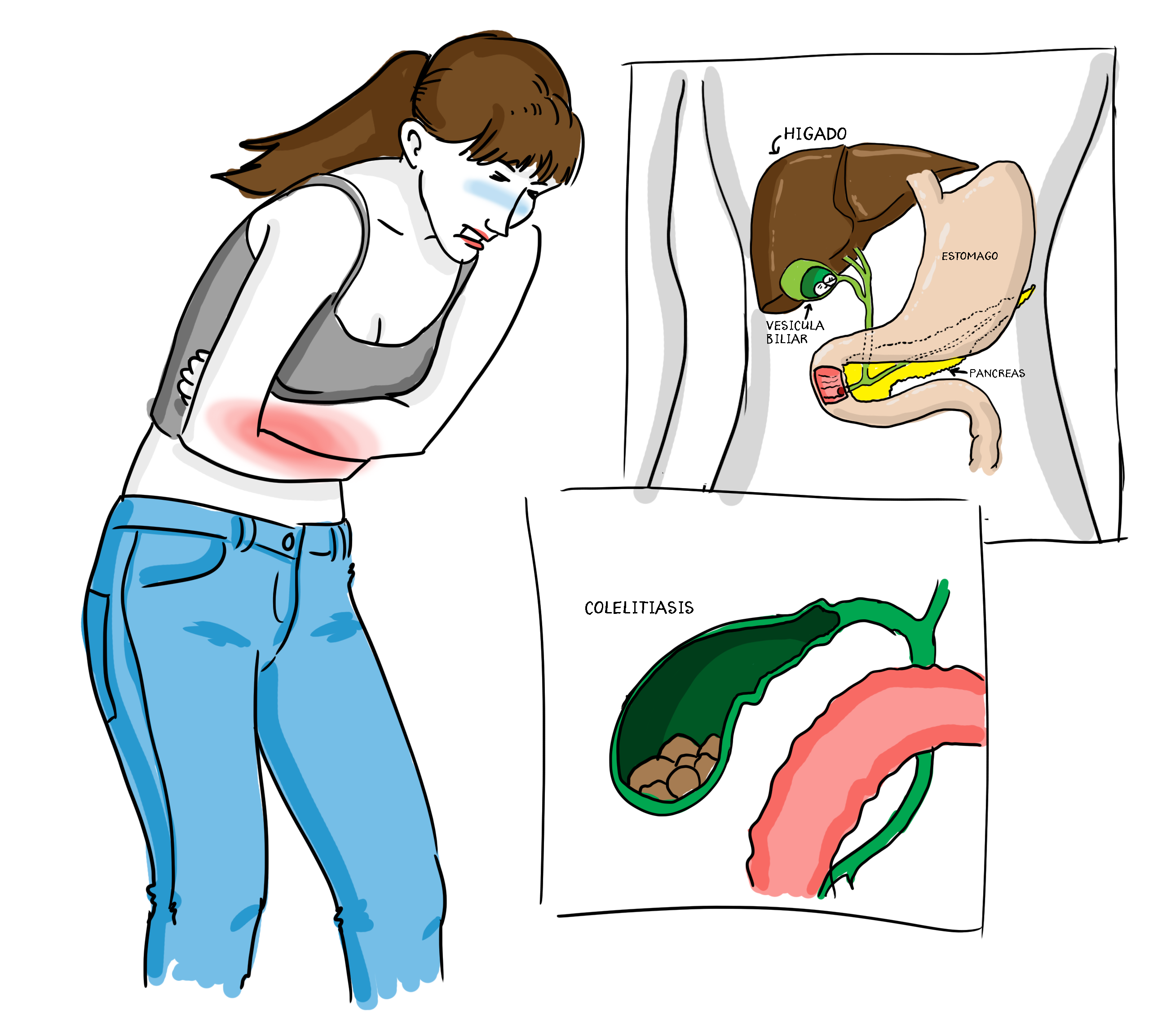 Educainflamatoria  Enfermedad inflamatoria intestinal Crohn