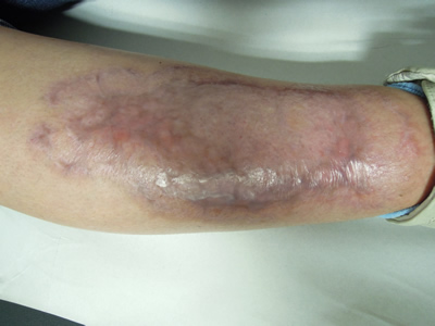 Imagen 2. Pioderma gangrenoso en pierna